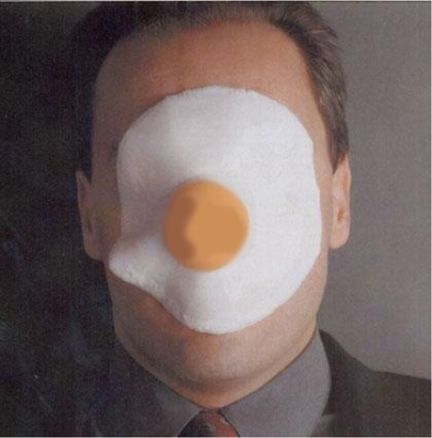 Man with egg on his face